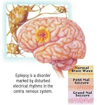stem cells epilepsy