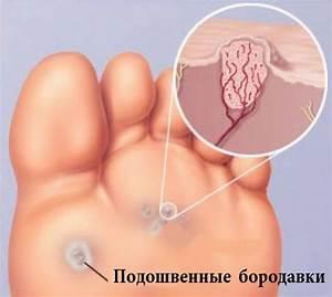 Прополис при лечении бородавок