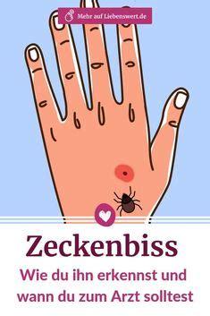 die  besten bilder von insektenstiche erkennen und