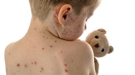 masern mumps oder roeteln kinderkrankheiten bloss nicht