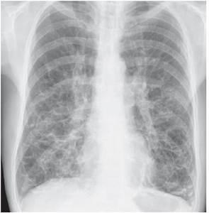 Bronchiectasis X Ray Tram Track | www.pixshark.com ...