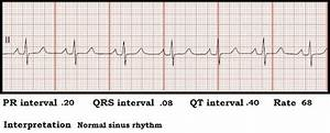 Float Nurse  Ecg Rhythm Strip Quiz 81  Interval Measurements