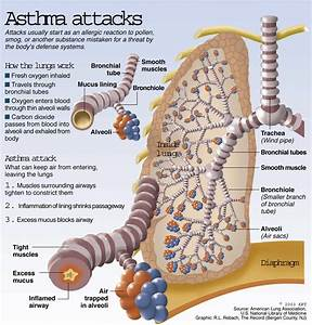 Breathe easy? Good and bad news about asthma