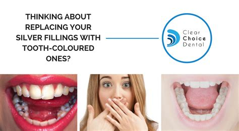 Read This Before Getting Your Silver Fillings Changed. Best Private Student Loan Consolidation. Financial Management Definition. Lowest Car Insurance Quote Dentist Roanoke Tx. North Star Mutual Insurance Company. Small Office Phone Solutions Schools In Wa. San Bernardino Social Security Office. Best 10 Year Fixed Mortgage Rates. Kansas City Liposuction Orthodontics Braces