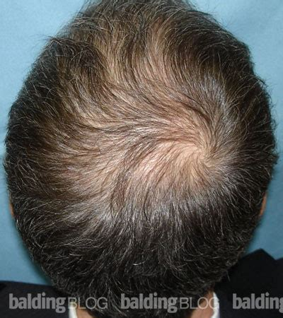 Propecia Shedding After 2 Years by 100 Rogaine Shedding After 1 Month Hair Loss Help
