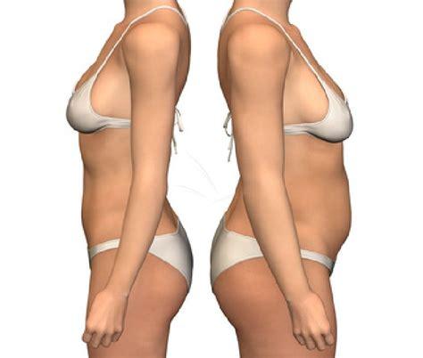 bodycenter for juvisy sur orge bilan corporel