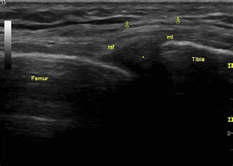 Ultrasound image of medial collateral ligament reveals the ...