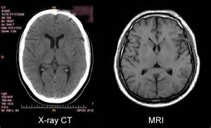 what is the difference between mri and cat scan inventor of the mri denied the 2003 nobel prize in medicine