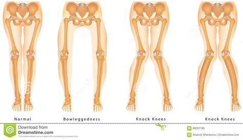 Bandy-legs stock vector. Illustration of genu, anatomy ...