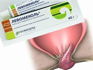 Лечение геморроя г.владимир