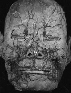 Angular Vessels As A New Vascular Pedicle Of An Island Nasal Chondromucosal Flap  Anatomical