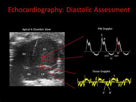 Echocardiography | Phenotyping Core