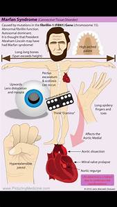 Marfan Syndrome  This Diagram Summarises The Features To