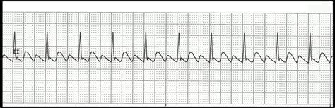 float nurse basic ekg rhythm test