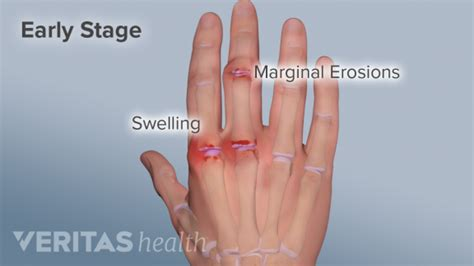 Hand Pain And Rheumatoid Arthritis. Education To Become A Personal Trainer. Software Development Projects Online. Master Of Science In Petroleum Engineering. What Is Joint Application Development. Fastest Internet Connection Lcc Job Postings. School Of Social Work Columbia. Cosmetic Dentistry Baton Rouge. Freight Shipping Quotes How Is Animation Done