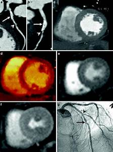 Evaluation Of The Myocardial Blood Supply  Dual