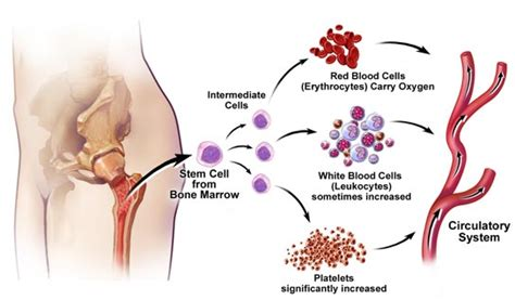 Tremore Interno Cause by Thrombocythemia Causes Symptoms Treatment Thrombocythemia