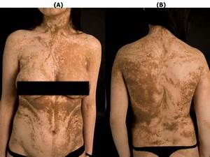 Top 15 Most Disturbing Skin Conditions