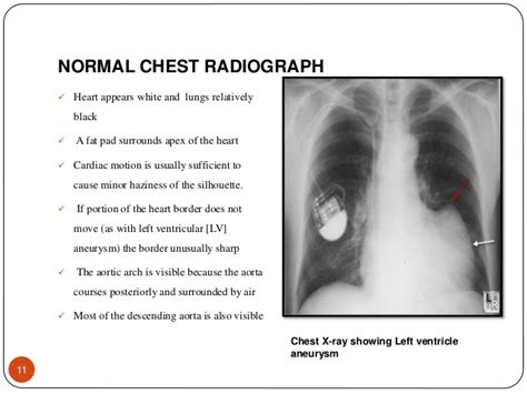 chest xray  evaluation  cardiovascular system