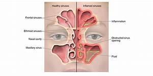Sinuses Draining Blood
