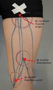 Pijn achterkant knie
