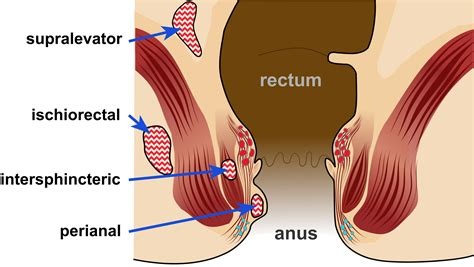 Anorectal Abscess Wikipedia