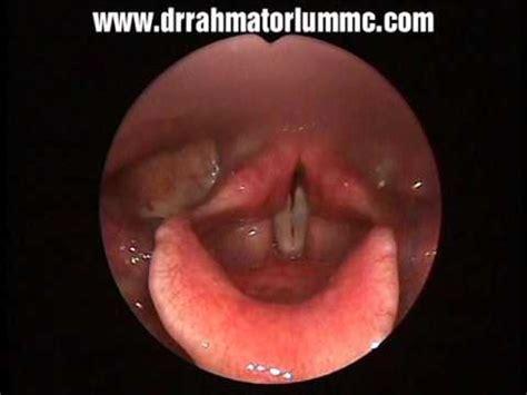 Reflux Laryngitis With Left Vocal Fold Polyp Youtube