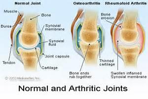 Osteoarthritis. Causes, symptoms, treatment Osteoarthritis Osteoarthritis
