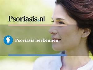 Psoriasis hoofdhuid oorzaak