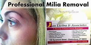 Beauty101byLisa: MILIA REMOVAL From EYE