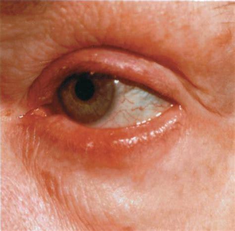 Ocular Rosacea FAQ's - Rosadyn