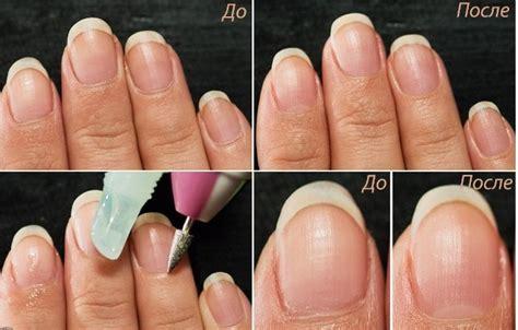 Как убрать кутикулу в домашних условиях как правильно удалить с ногтей