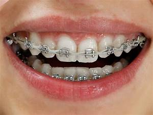 Metal Braces - The Look Orthodontics