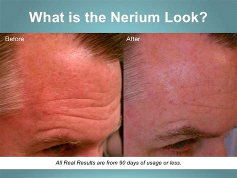 Nerium Scientific Breatkthrough Skincare  Brand Partners. South University Aa Program 49 San Jacinto. Free Quote Car Insurance Mesothelioma Stage 4. How To Share Files With Friends. Distance Learning Biology St Moritz Security. Left And Right In Spanish Fra Airport Hotels. Adcb Credit Card Offers Self Directed Account. Credit Life Insurance Rates Take In Spanish. Emergency Plumbers Denver Prweb Coupon Codes