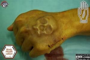 Subdermal Skull Implants - The Skull Appreciaton Society