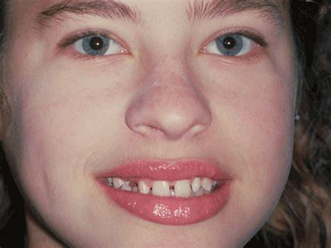 cosmetic dentistry grace sun dds