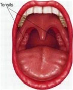 Tonsillitis - body, viral, causes, What Is Tonsillitis?