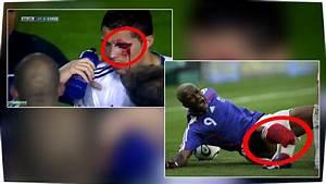 Jeux De Footballeurs : top 13 des pires blessures de footballeurs par lia youtube ~ Medecine-chirurgie-esthetiques.com Avis de Voitures