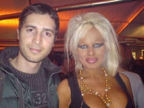 celebrities plastic surgery fail