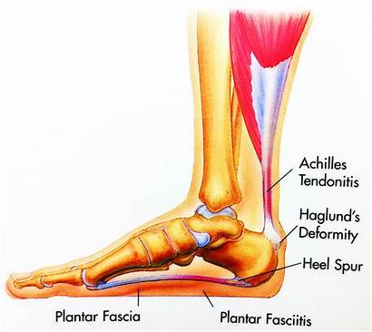 Heel Spur Syndrome Foot Plantar Pain Ankle