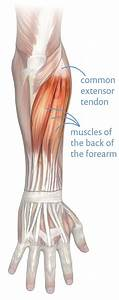 Tennis Elbow Guide  Not Just For Tennis Players