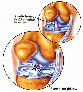 Anterior Cruciate Ligament Injury  A Risk Factor For