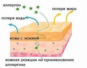 Ликопид лечение псориаза отзывы
