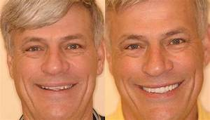 10 Best Austin Dental Implants Dentists
