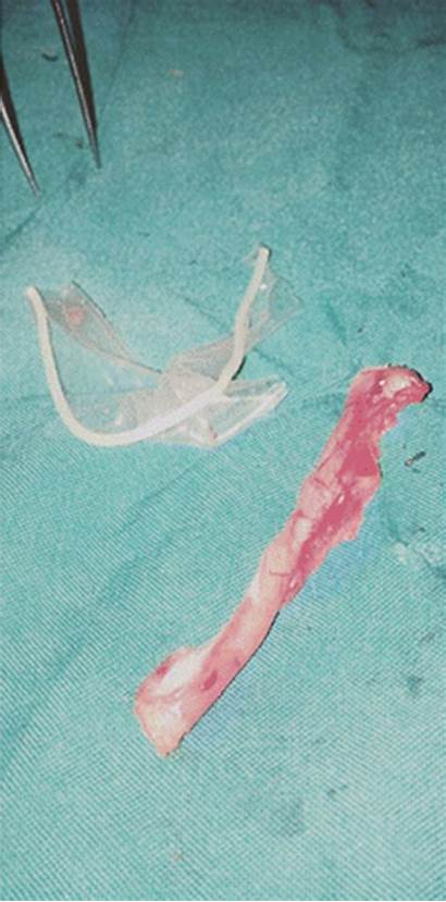 Condom Appendix Condoms Oral Inside Woman Wrapped