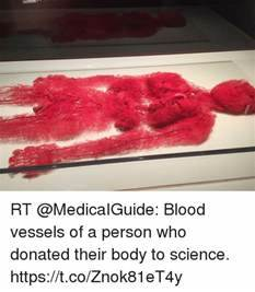 Rt Blood Vessels Of A Person Who Donated Their Body To