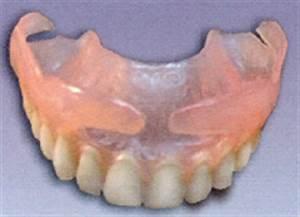 Valplast Prothese Abrechnung : technique valplast esthetic dentaire laboratoire de ~ Themetempest.com Abrechnung