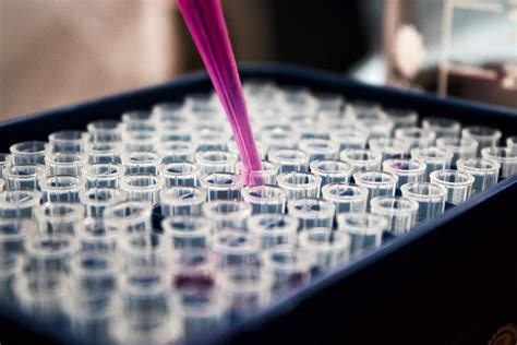 An Overview of Protein Assay Methods   Total Protein Assay Kit