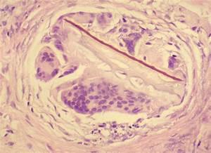 Foreign Body Granulomas