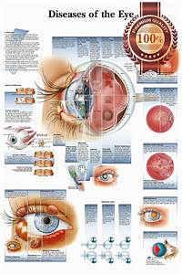 New Diseases Of The Human Eye Infomational Chart Diagram